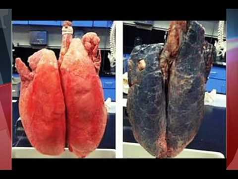 O Dia Mundial da Luta contra o Tabaco é celebrado anualmente em 31 de maio
