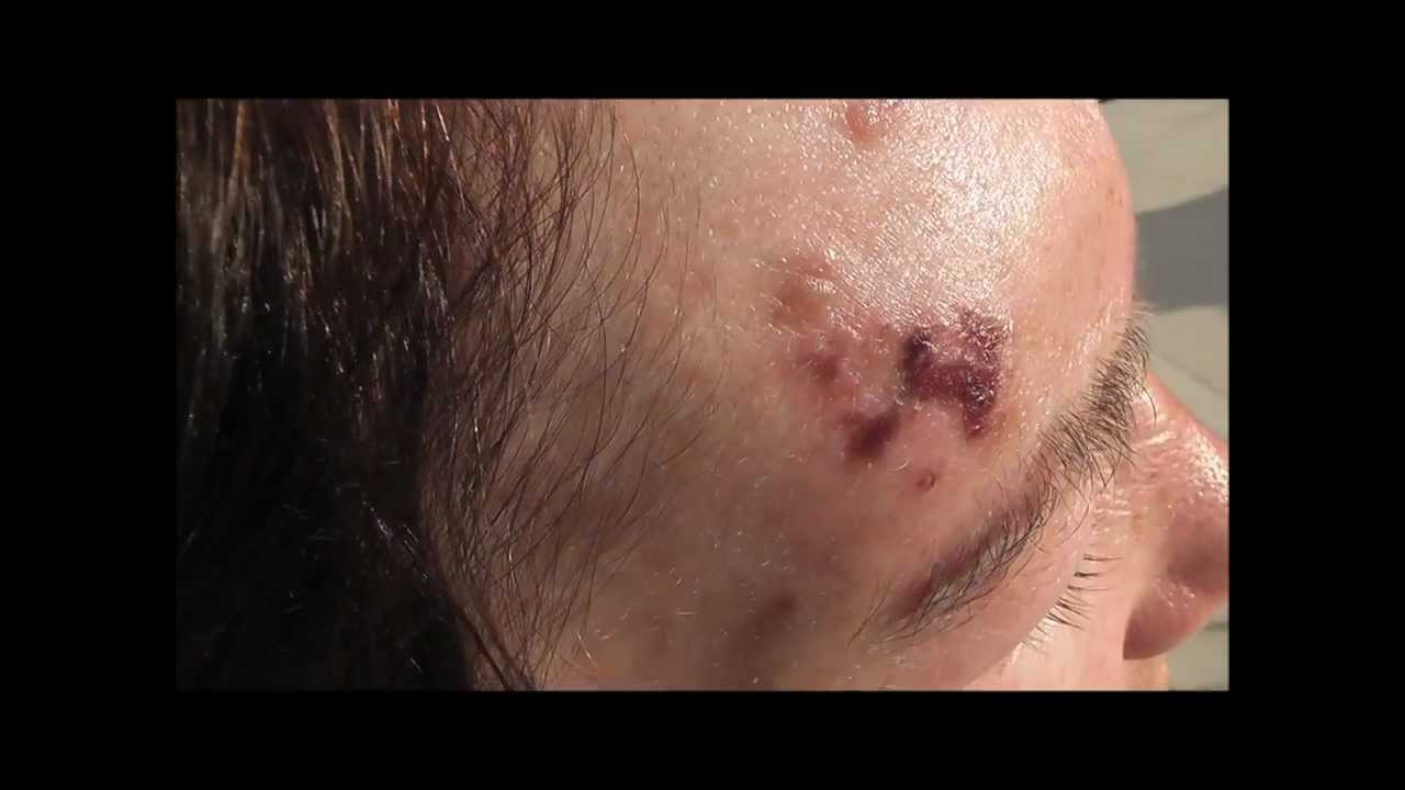 genital herpes lesions - eMedicineHealth
