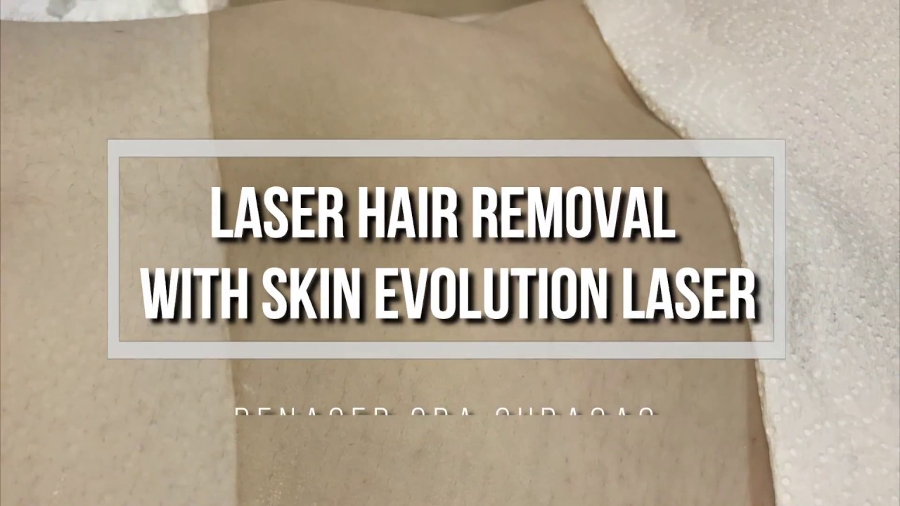 Know all the benefits of Skin Evolution Laser