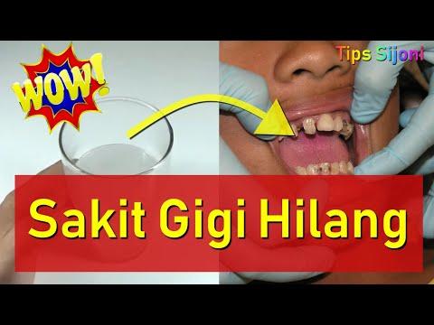 √-ampuh!!!!-cara-mengobati-sakit-gigi-secara-alami-dan-cepat