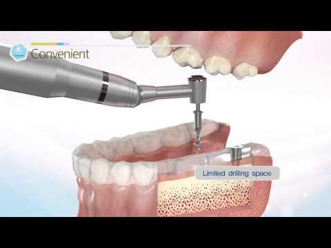 [Dentis Implant Dental Guide System] Simple Guide