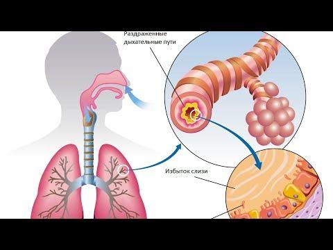Четыре способа УДАЛЕНИЯ СЛИЗИ и МОКРОТЫ из горла и груди - быстрый результат!
