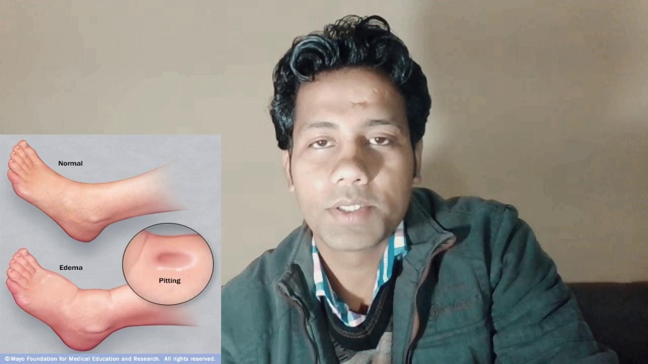 शरीर में किसी भी तरह की सूजन के लिए जरूर देखें !! swelling By Dr Tarun chauhan