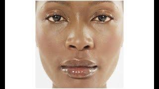 Ce Traitement simple , rapide vous aidera à vous débarrasser de la peau grasse définitivement..!