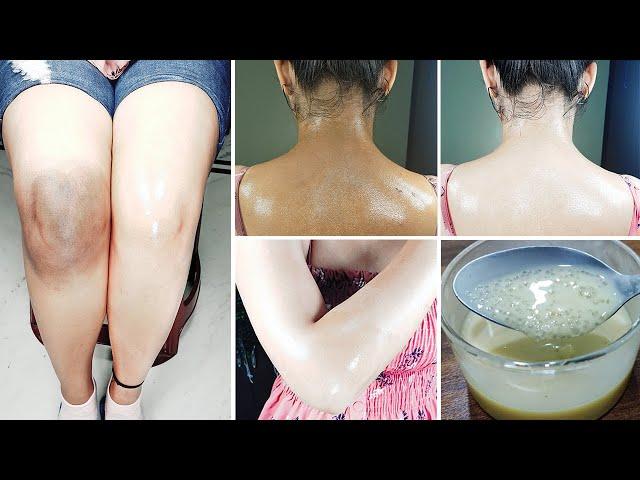 In Just 5 Minutes Whitening Dark Body Parts | 5 मिनट में शरीर के सारे कालेपन दूर हो जायेगा