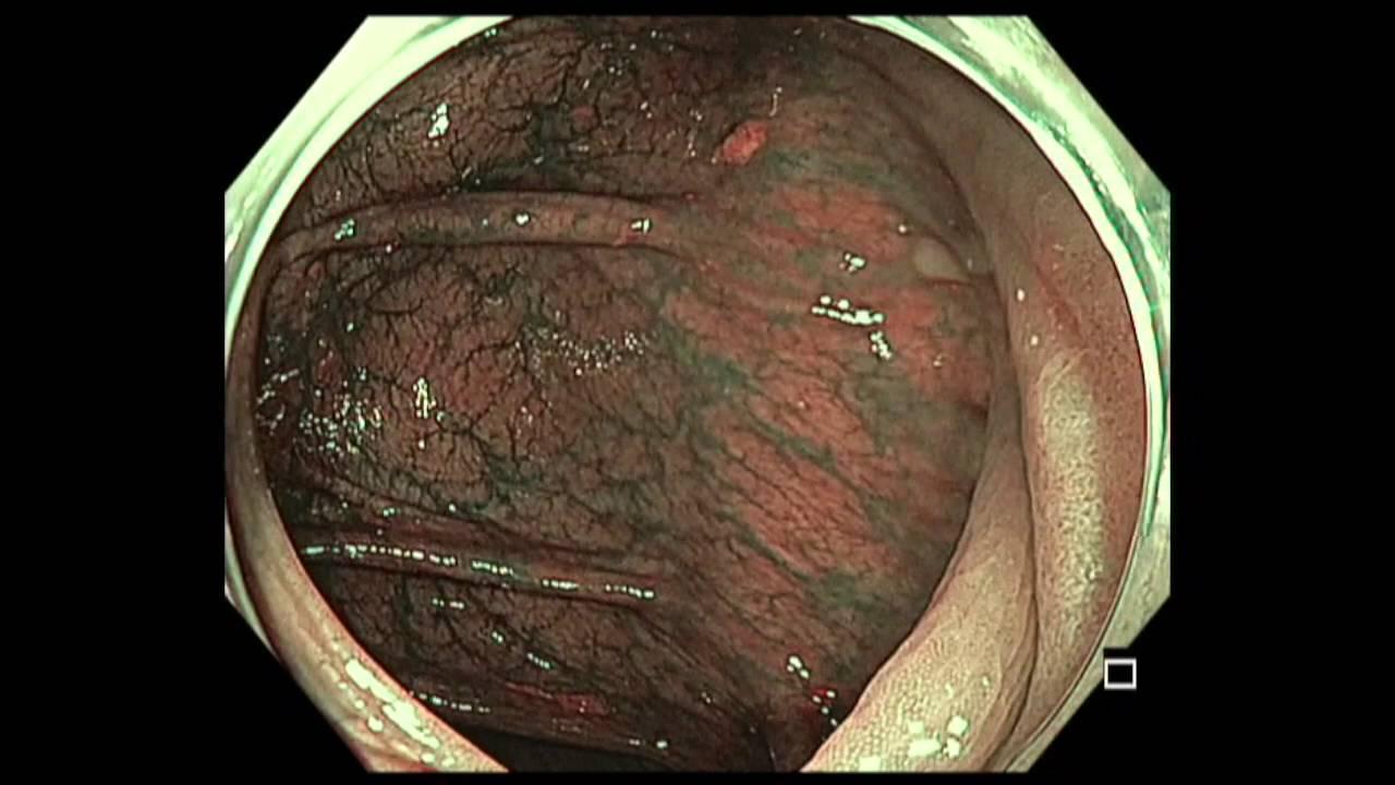 Colonoscopy Transverse Colon Subtle Lesion Youtube