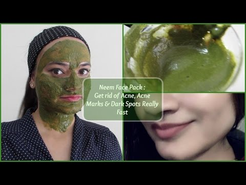 Get rid of Acne, Acne Marks & Dark Spots really fast | Neem Face pack