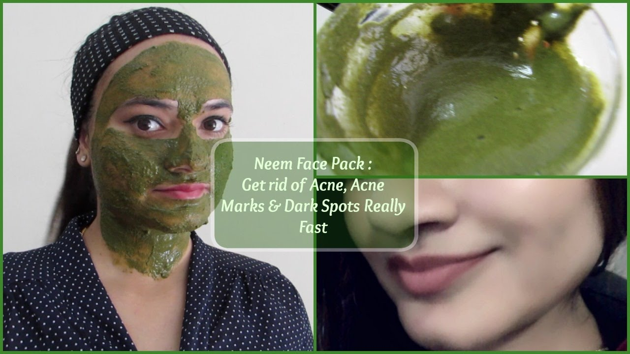 how to get rid of spots really quickly