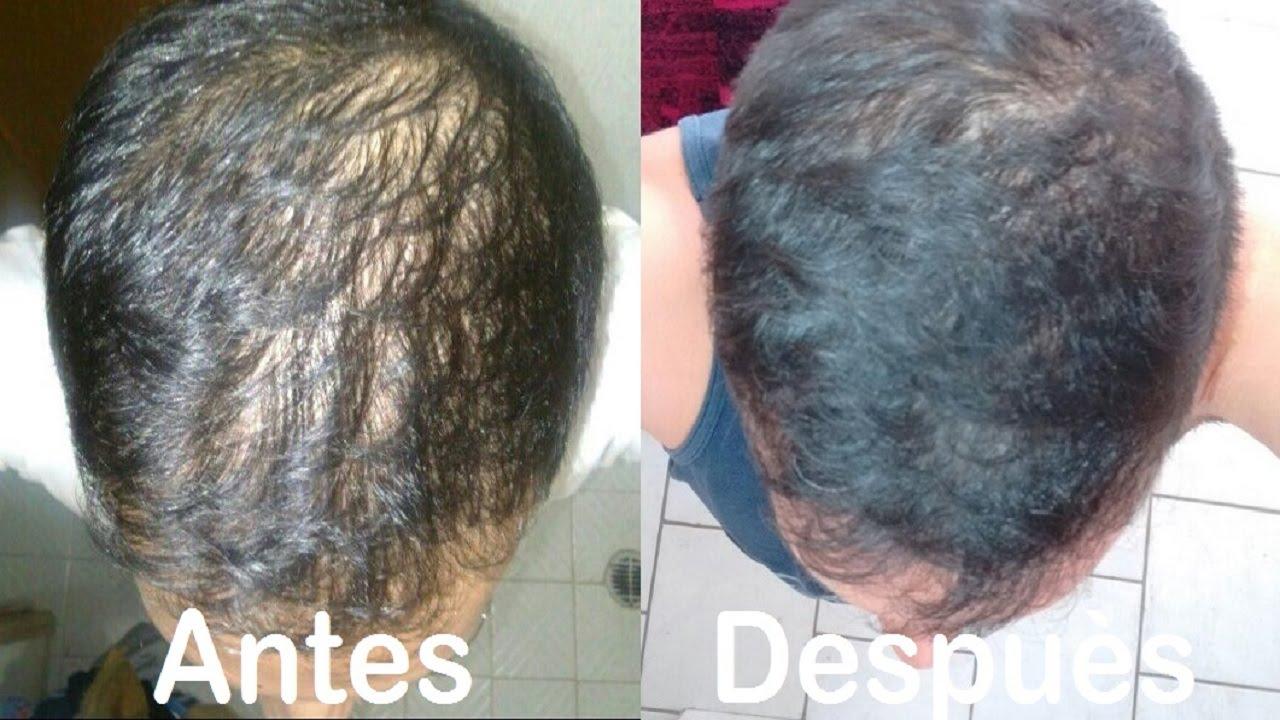 tratamiento de la calvicie
