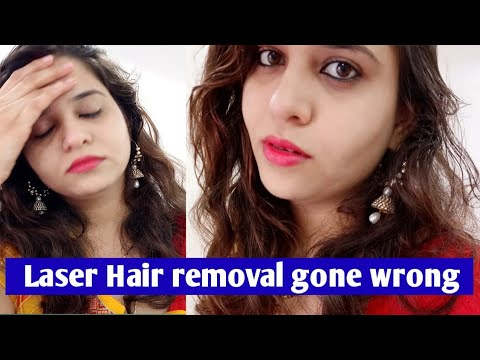 Laser Hair Removal Treatment Gone Completely Wrong My Experience Side Effect In Hindi Youtube