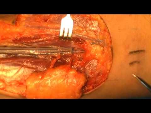 Cirugía de la