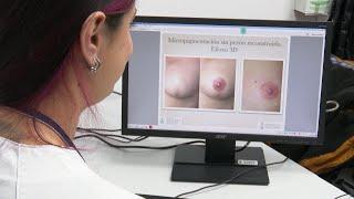 Primera consulta de micropigmentación de areola mamaria en València