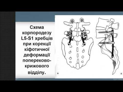 Современное лечение кифоза грудного отдела позвоночника