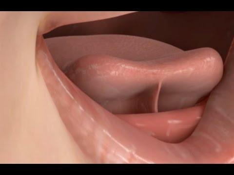 Tongue Tie Release Treatment
