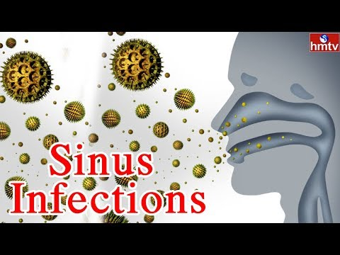 Asthma, Allergy & Sinusitis Problems | Symptoms & Treatment | Star Homeopathy | Jeevana Rekha |HMTV