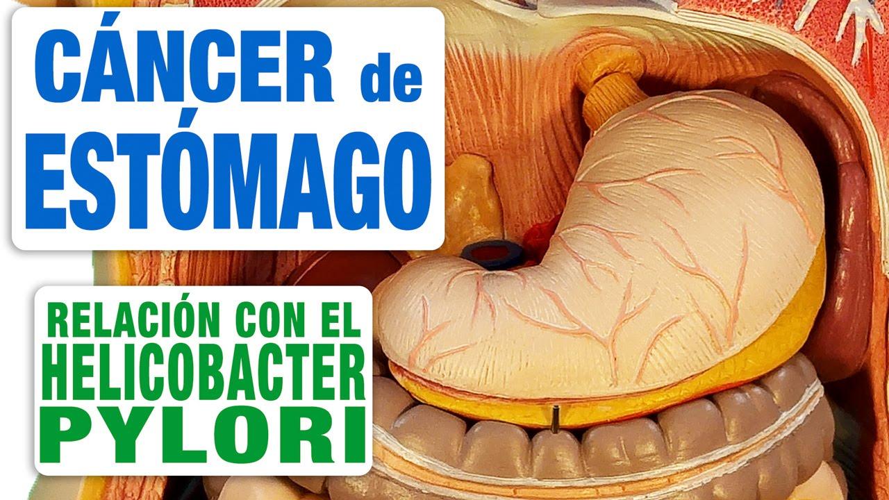 Como se llama la bacteria del cancer de estomago