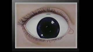New Jersey Eye Center Commercial for Cataract Surgery (1987)