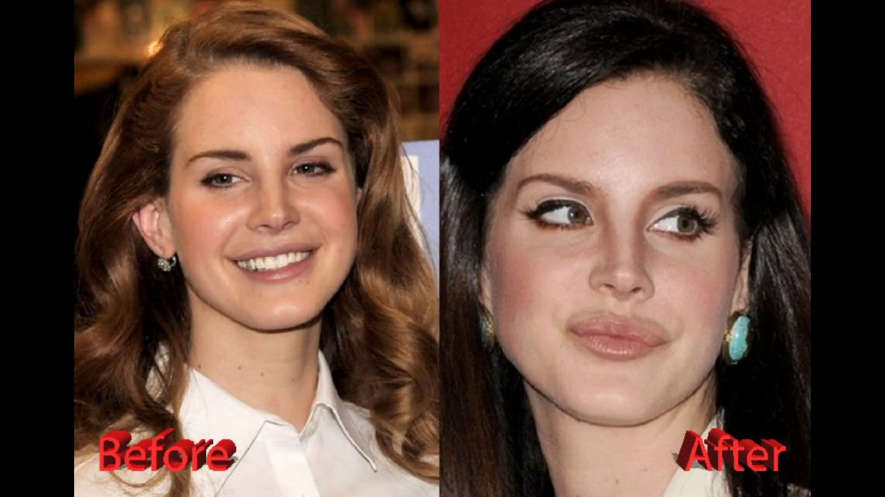 9ca108393 Lana Del Rey Plastic Surgery  Before and After Lip Implants and Nose ...