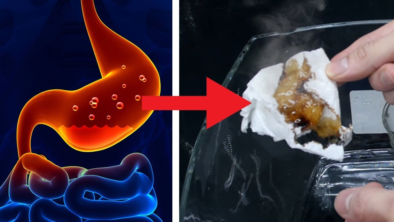 This is what our STOMACH ACID can burn through - YouTube