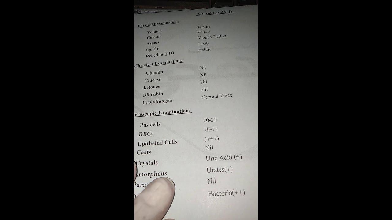 كيفية قراءة تحليل البول Urine Analysis Youtube