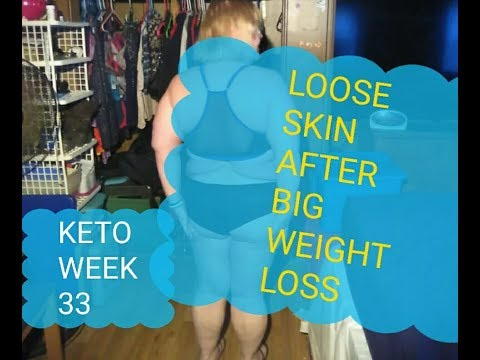 keto-wk-33,-full-body-loose-skin-80-pounds-lost!