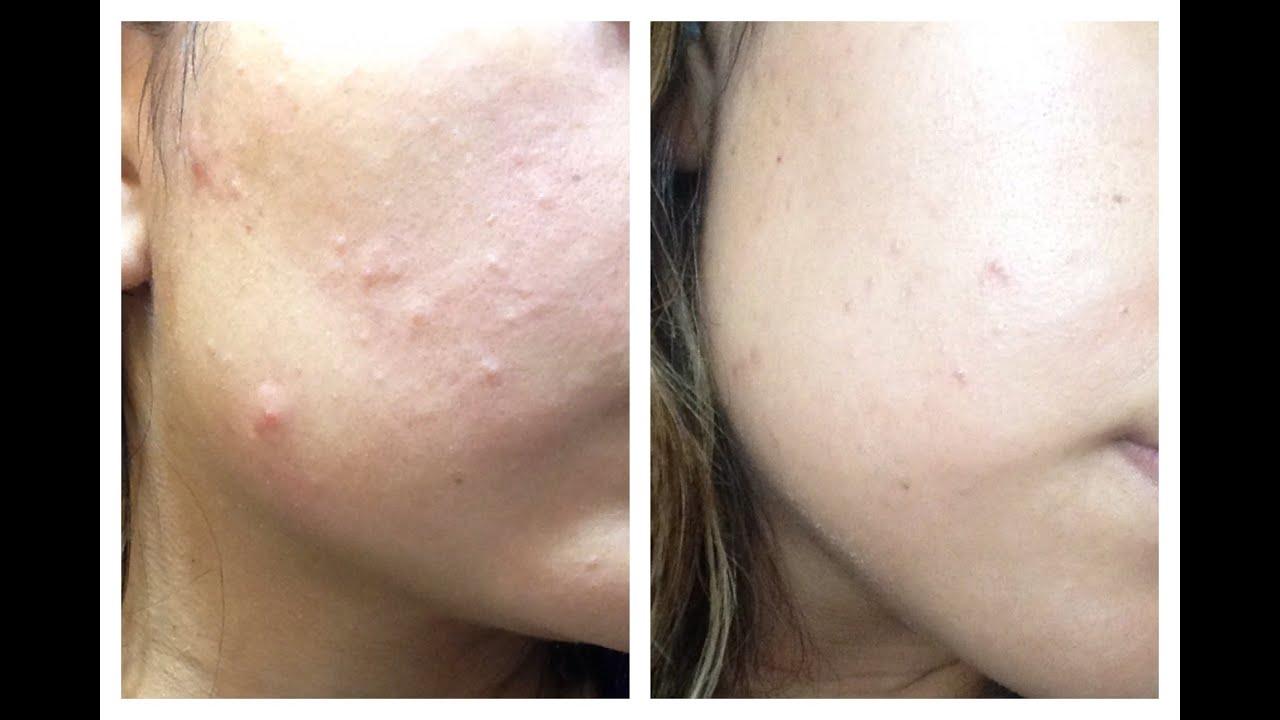 Como eliminar las manchas del acne en una semana