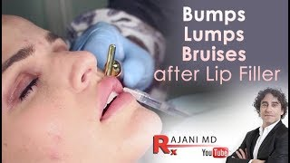 Bumps Lumps Swelling and Bruising after lip Fillers-Dr Rajani