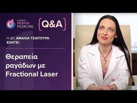 Θεραπεία ραγάδων - fractional laser: η δερματολόγος Δρ. Αμαλία Τσιατούρα μας ενημερώνει