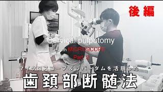 歯頚部断髄法(後編) ノーカット 《マイクロスコープ歯の神経を残す治療》その理論と術式 最新歯科治療とは?Cervical pulpotomy Microscope