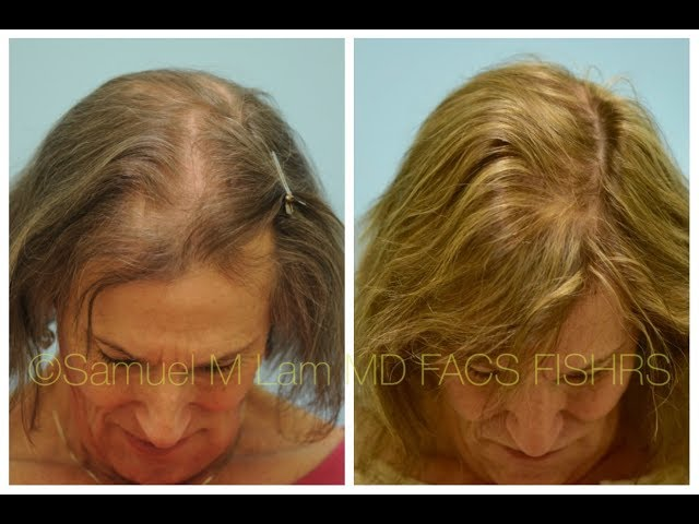 Dallas MTF Transgender Hair Transplant Front to Back 1 Year Out Testimonial + Photos