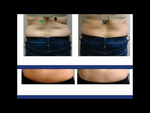 Best Food For Abdominal Fat Lose