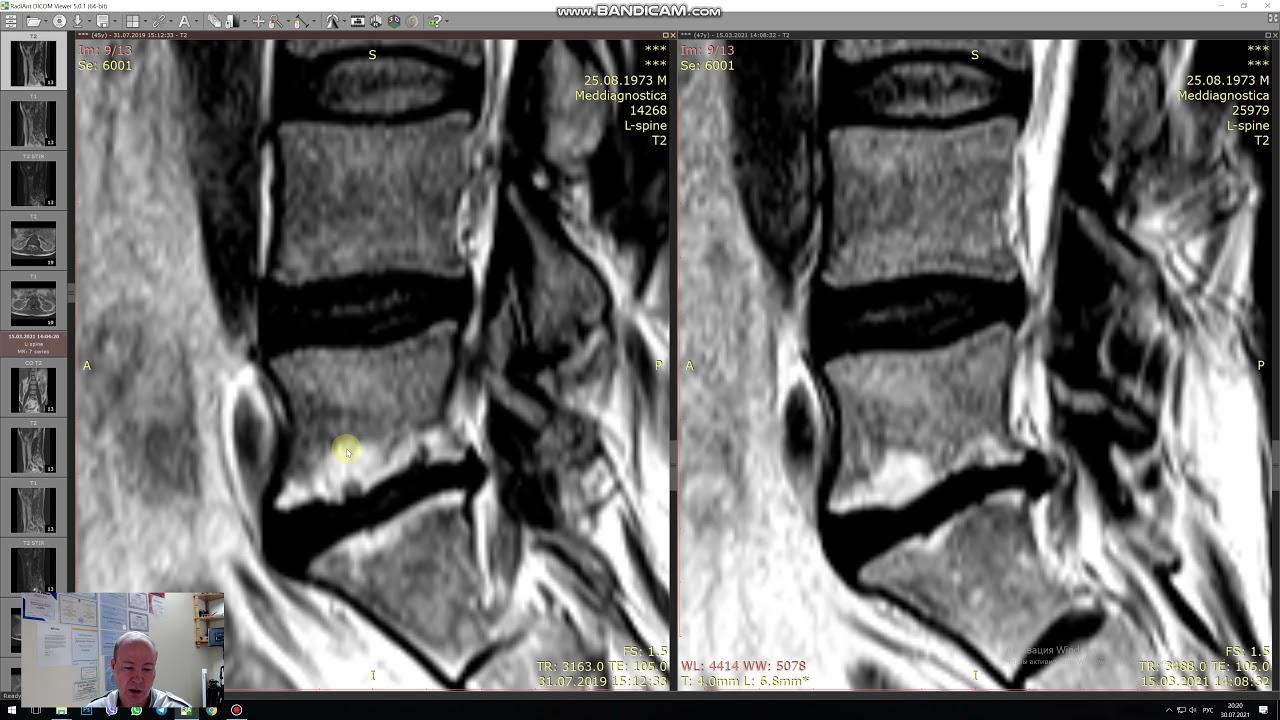 Лечение остеохондроза поясничного отдела МРТ до и после. Изменения по Modic