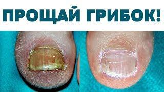 Купила в аптеке ЗА КОПЕЙКИ сильнейшее СРЕДСТВО  от ГРИБКА ногтей и стоп