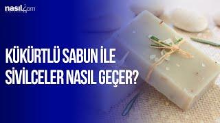 Sivilceler için bire bir! | Kükürtlü sabunun nasıl faydaları vardır? | nasil.com