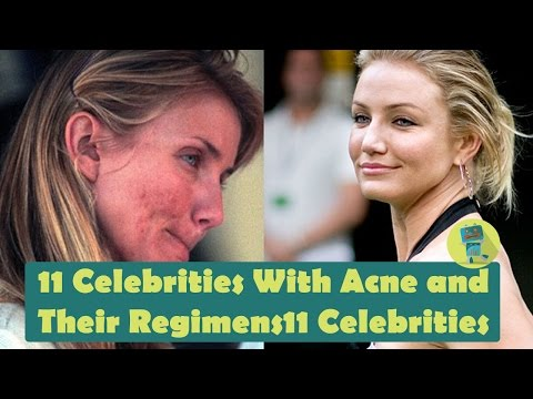 11 Celebrities With Acne And Their Regimens
