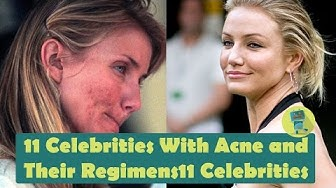 hqdefault - Celebrities Who Have Overcome Acne