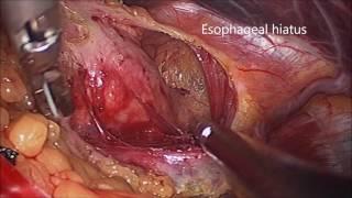 Laparoscopic Fundoplication (Toupet)