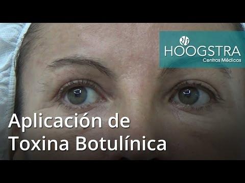 Aplicación de Toxina Botulínica (16063)