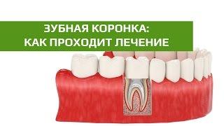 Лечение пульпита: восстановление зуба культевой вкладкой и коронкой после лечения пульпита(, 2016-01-21T00:18:53.000Z)