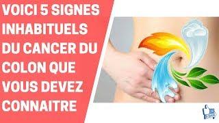 VOICI 5 SIGNES INHABITUELS DU CANCER DU COLON QUE VOUS DEVEZ CONNAITRE
