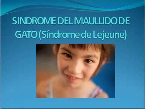 Síndrome del maullido de gato - YouTube
