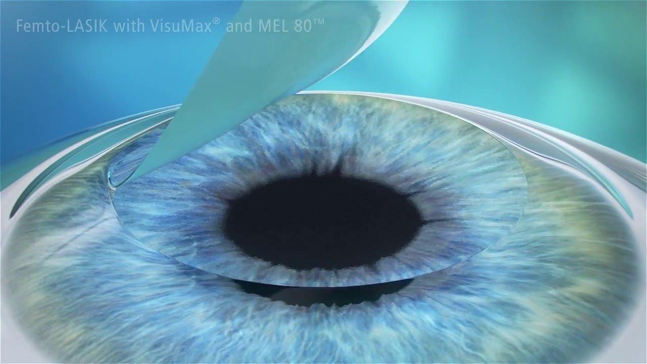 lasik femtoseconde la chirurgie des yeux au laser 2000 youtube. Black Bedroom Furniture Sets. Home Design Ideas