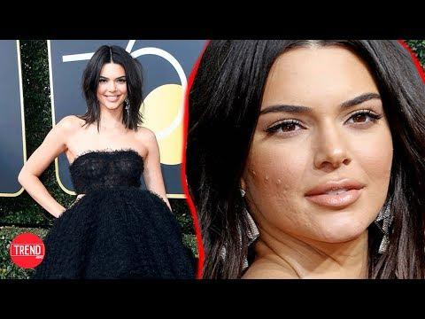Kendall Jenner se defendió de su ACNÉ en los globo de oro! | Trend News
