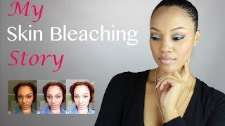 My Skin Bleaching Story !