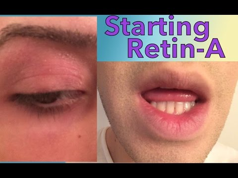 Retinae Acne Cream - All The Best Cream In 2018