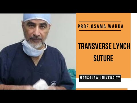 (video 2)PROF.OSAMA WARDA: PERFORMING THE TRANSVERSE LYNCH SUTURE AFTER SEPARATING THE PLACENTA :