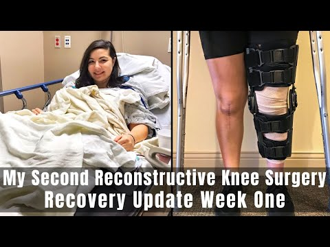 Download My Second Reconstructive Knee Surgery | TTO, MPFL, OCA & Lateral Lengthening | December 30, 2019