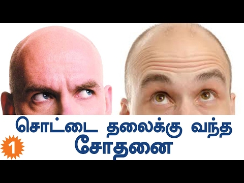 Mozambique Superstition about Bald Head | Oneindia Tamil