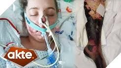 Horror-Diagnose: Meningitis C! Kann die Ansteckung verhindert werden? | Akte | SAT.1 TV