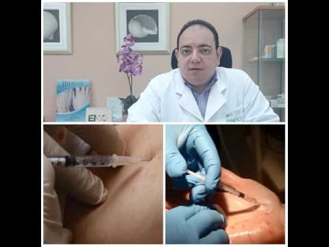 Emirates Medical Center Botox Hyperhidrosis